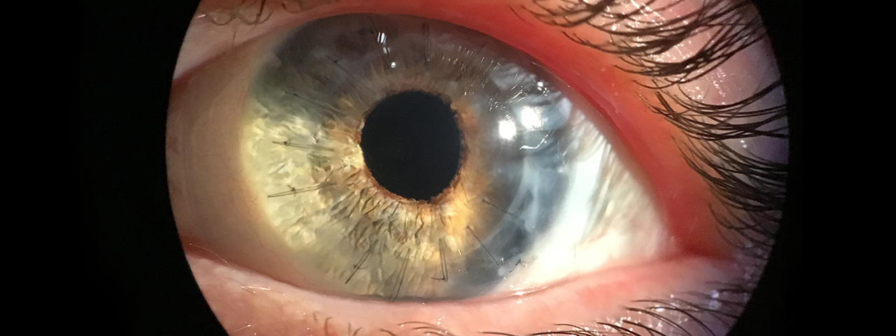 Close-up of eye being scanned for eye disease in Niles